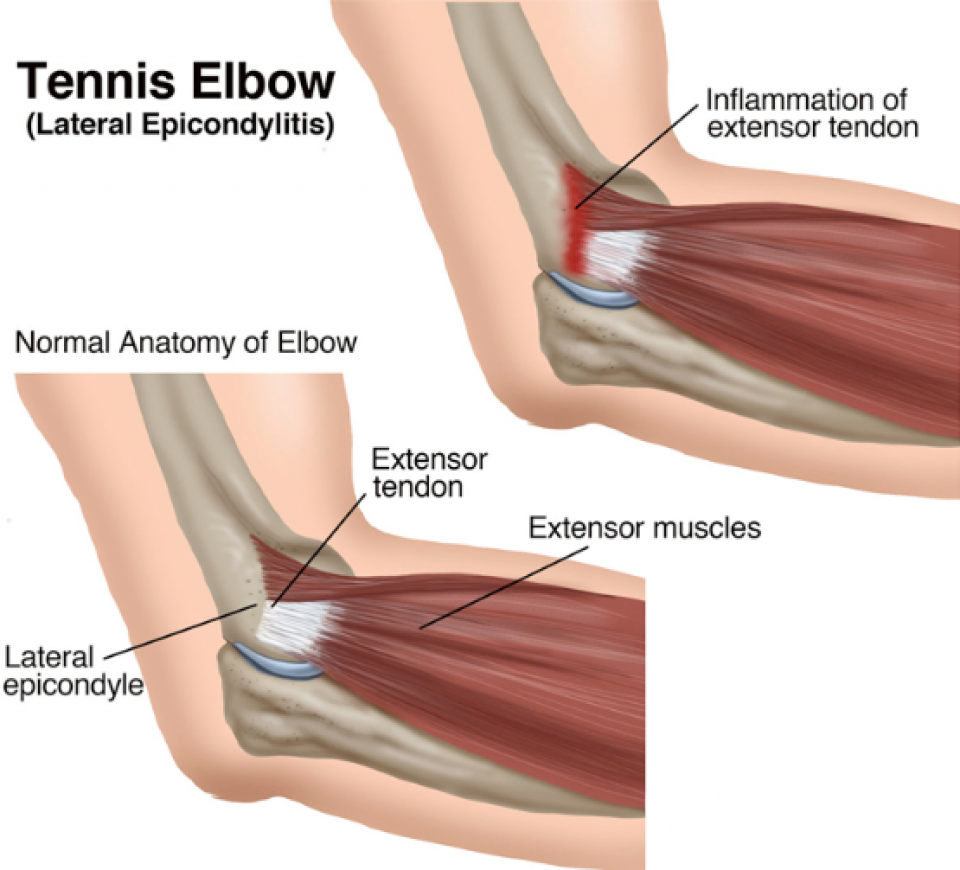 Overuse Injuries – De Quervains or Tennis Elbow | Re-Wired Hand ...